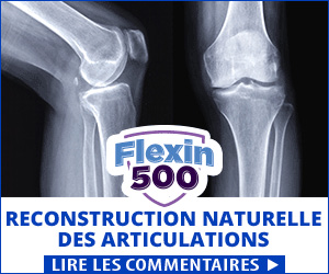 Flexin500 - articulations